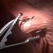 Balón gástrico y procedimiento no quirúrgico